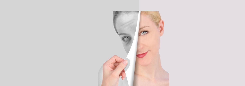 Tratamiento de arrugas de expresion